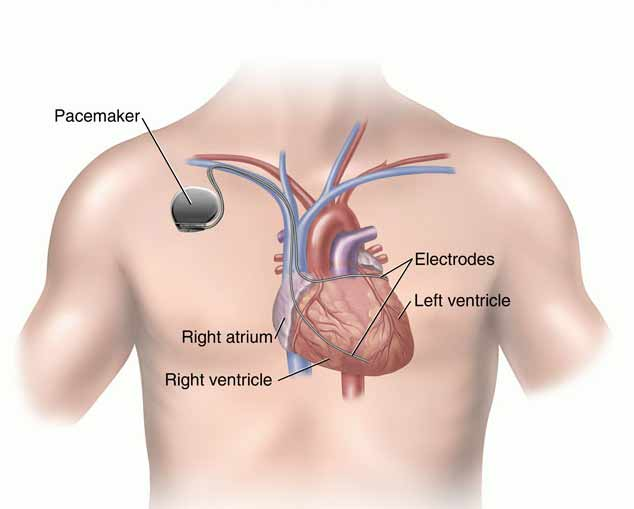 Remote Monitoring for Cardiac Devices | Heart Rx Cardiology